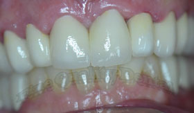 zirconium crowns in mouth